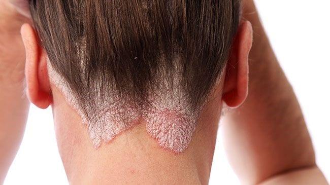 Bild mit Psoriasis auf der Kopfhaut und vielen Schuppenflechten