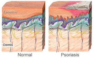 Psoriasis Bild - normale Haut und Psoriasis