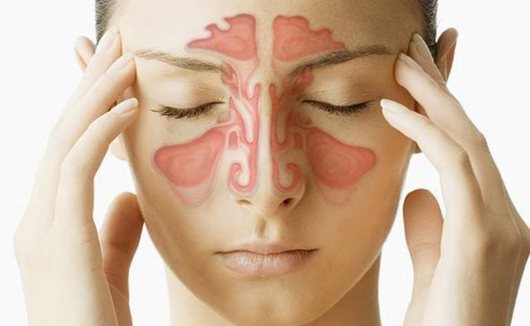 Wie man Sinusitis mit Naturheilmitteln kuriert