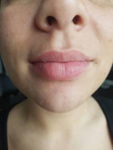 Beste Möglichkeit, Akne über Nacht zu heilen