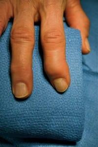gekrümmter Finger aufgrund Arthritis/Rheuma