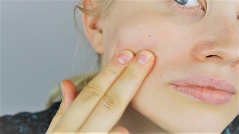 Gesichtsmaske, um Pickel über Nacht loszuwerden